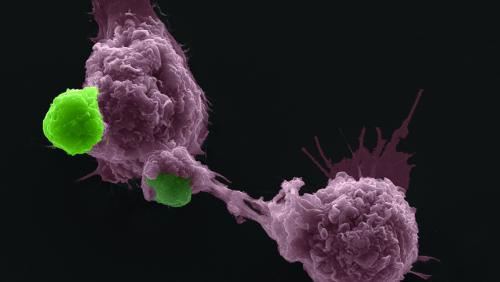 UMass Medical imagery of cells